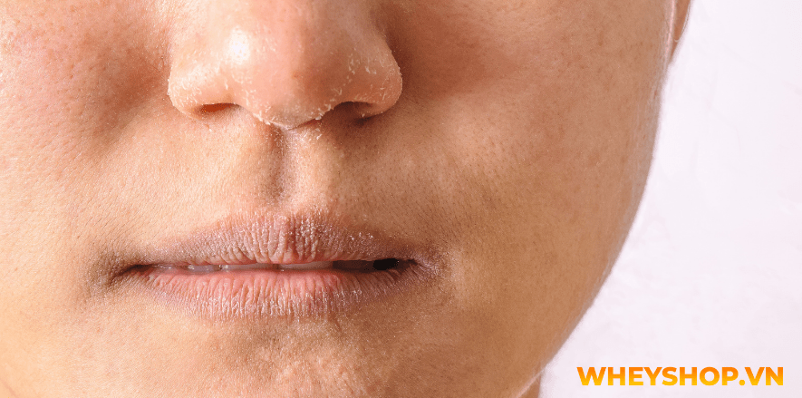 Các bước dưỡng da ban đêm vô cùng quan trọng bởi nếu không dầu thừa trên da là một trong những nguyên nhân phổ biến nhất gây ra mụn, gây bít lỗ chân lông và...