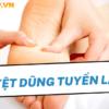 Huyệt dũng tuyền là một trong số hàng trăm huyệt đạo quan trọng trên cơ thể người và có thể được áp dụng trong việc điều trị nhiều bệnh lý nguy hiểm. Do đó...