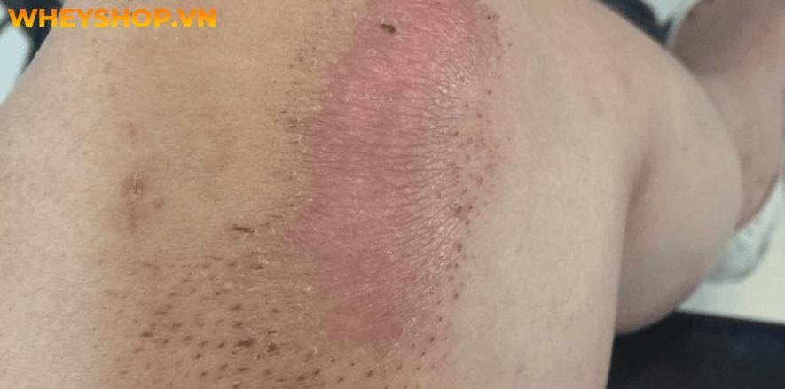Da non là lớp da mới đang trong quá trình hồi phục và cảm giác ngứa ran do bong tróc da, vết thương sau phẫu thuật, trầy xước, bỏng. Làm sao để da non hết đỏ...