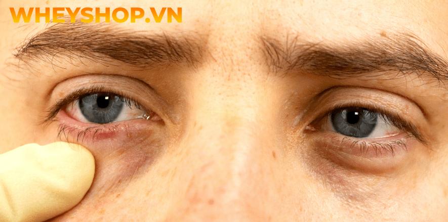 Nháy mắt phải ở nam là một hiện tượng khá phổ biến có thể xuất hiện ở bất kỳ lúc nào. Nhiều người xem đó là điềm báo cho một điều gì đó sắp xảy ra, nhưng...