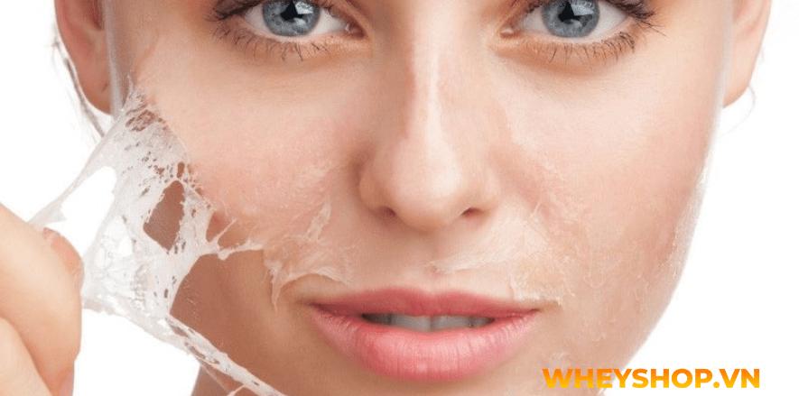 Nếu bạn đang băn khoăn việc peel da tại nhà và những lưu ý khi peel da thì hãy cùng WheyShop tham khảo chi tiết bài viết ngay sau đây nhé...