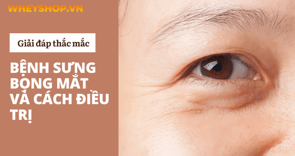 Sưng bọng mắt xuất hiện khiến đôi mắt của bạn lúc nào trông cũng mệt mỏi và mất tính thẩm mỹ. Sưng bọng mắt không chỉ làm chúng ta không tự tin khi giao tiếp...