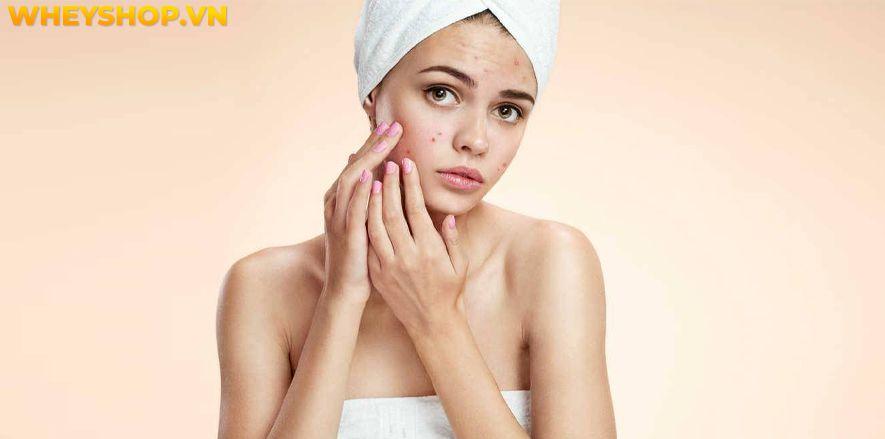 Nếu bạn đang băn khoăn tìm cách chăm sóc da mụn và thâm thì hãy cùng WheyShop tham khảo chi tiết bài viết ngay sau đây...