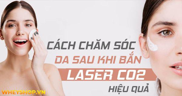 Cách chăm sóc da sau khi bắn laser Co2 hiệu quả và an toàn