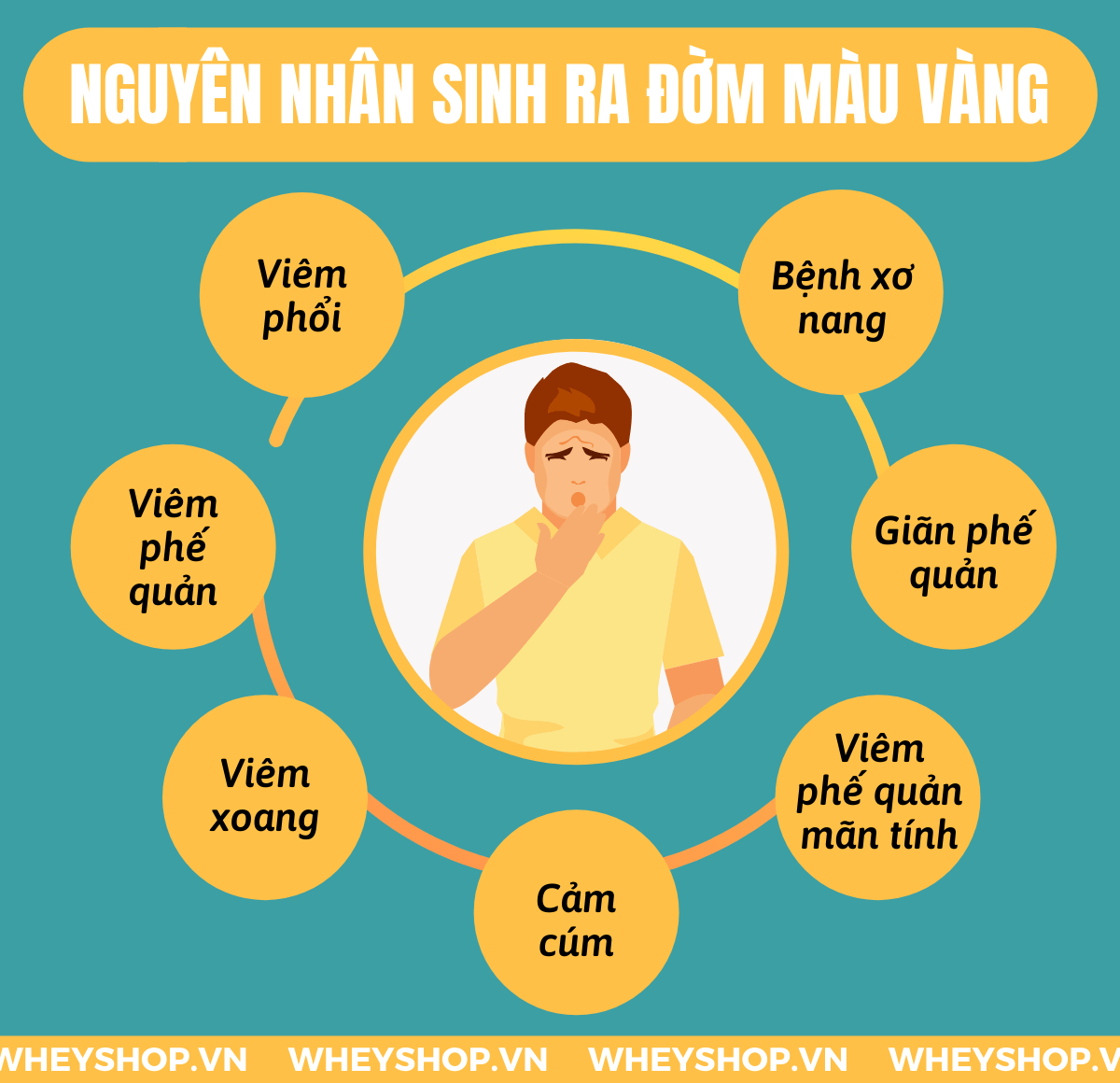 Đờm màu vàng là tình trạng rất phổ biến và thường gặp ở rất nhiều người. Sự xuất hiện quá nhiều đờm là 1 trong những trong những cảnh báo về chứng trạng tình...