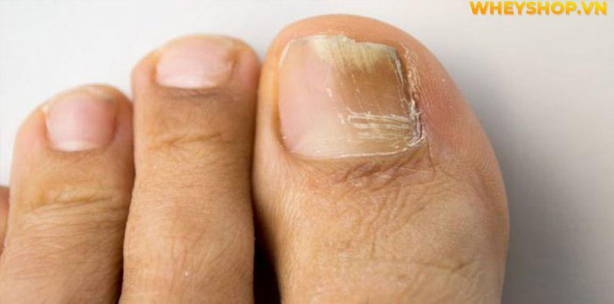 Nếu bạn đang băn khoăn tìm hiểu vì sao móng chân bị gợn sóng thì hãy cùng WheyShop giải đáp chi tiết thắc mắc qua bài viết ngay sau đây nhé...