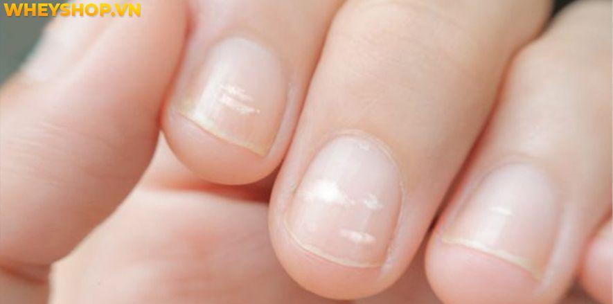 Bạn có thường gặp phải những hạt gạo trên móng tay hoặc móng chân của bạn không? Nếu vậy, bạn đã bao giờ thắc mắc hiện tượng này là gì chưa? Xin mời các bạn...