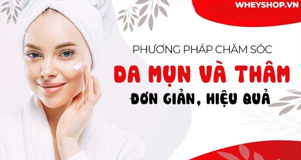 phuong phap cham soc da mun va tham don gian 2